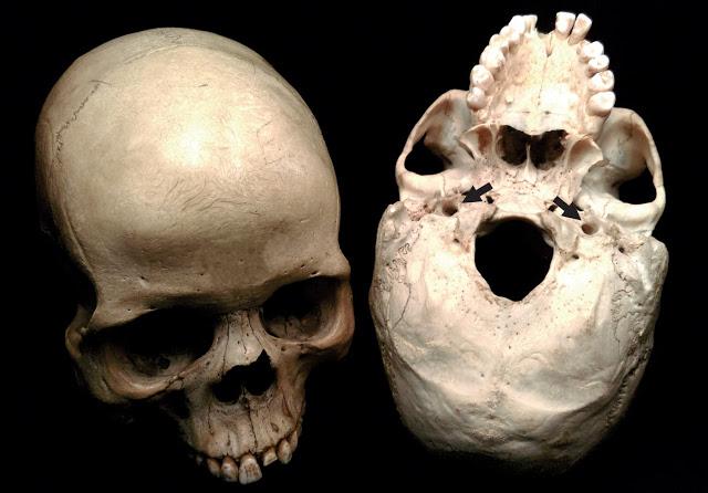 Beynin neredeyse tümünü karşılayan iki iç karotid aterler açıklığının yerini gösteren insan kafatasları. Bu açıklıkların boyutu, beynin metabolizma hızı ve bilişsel yetileriyle bağlantılı olan kan akışının oranını gözler önüne seriyor.[Fotoğraf: Edward Snelling. Raymond Dart Collection of Human Skeletons. Anatomik Bilim Okulu, Sağlık Bilimleri Fakültesi, Witwatersrand Üniversitesi]