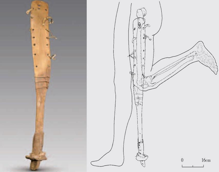 protez-bacak