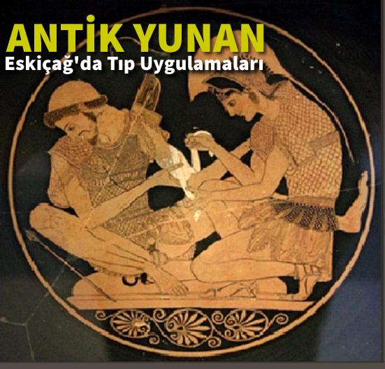 Eskiçağ'da Tıp Uygulamaları (Bölüm 4 Antik Yunan)