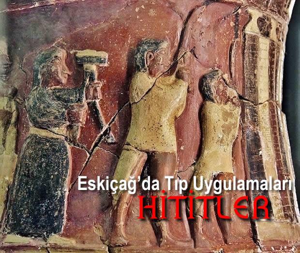 Eskiçağ'da Tıp Uygulamaları (Bölüm 2 Hititler)